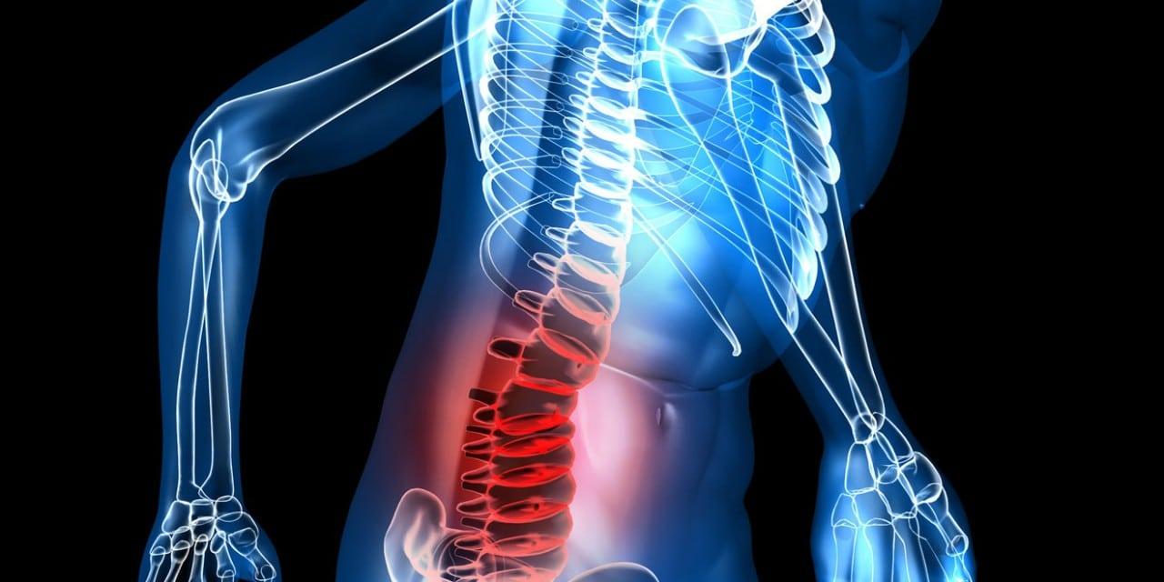 Atténuer les douleurs causées par arthrose dorsale