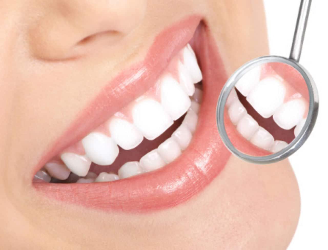 Comment se présente un implant dentaire?
